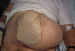 Patient with a colostomy complicated by a large parastomal hernia.