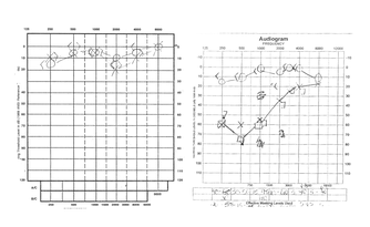 Audiograms illustrating normal hearing (left) and unilateral low-pitch hearing loss associated with Ménière's disease (right)