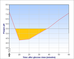 """Stephan curve"", showing sudden decrease in plaque pH following glucose rinse, which returns to normal after 30–60 min. Net demineralization of dental hard tissues occurs below the critical pH (5.5), shown in yellow."