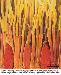 Scanning electron micrograph depicting the retinal rod and cone photoreceptors. The elongated rods are colored yellow and orange, while the shorter cones are colored red.