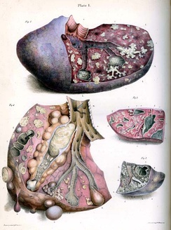 Robert Carswell's illustration of tubercle[61]