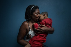 The 2015–16 Zika virus epidemic led to large numbers of children being born with microcephaly, with adoption a frequent outcome.