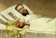 Period painting of a US Civil War soldier, wounded by a Minié ball, lies in bed with a gangrenous amputated arm.
