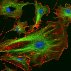 Immunofluorescence image of the eukaryotic cytoskeleton. Microtubules as shown in green, are marked by an antibody conjugated to a green fluorescing molecule, FITC.