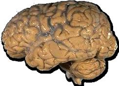 Головной мозг человека (фиксированный в формалине)
