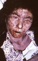 An Italian female smallpox patient whose skin displayed the characteristics of late-stage confluent maculopapular scarring, 1965.