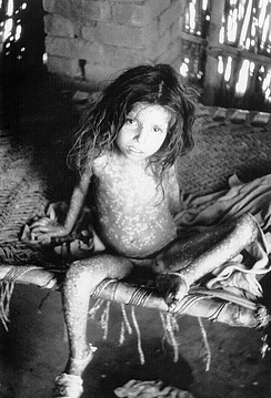 A child showing rash due to ordinary-type smallpox (variola major)