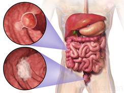 Location and appearance of two example colorectal tumors