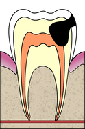 Cavities evolution 4 of 5 ArtLibre jnl.png