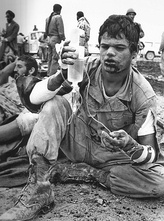 Iranian soldier holding an IV bag during the Iran–Iraq War