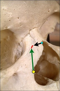 Illustration 2:Nose-narrowing rhinoplasty; two chisel cuts (green and black arrows) meet at the red zig-zag line to release the bone for corrective re-alignment.