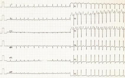 ЭКГ при фибрилляции предсердий: нет зубцов P, нерегулярные интервалы RR, мелкие волны f