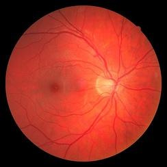 Слепое пятно правого глаза — на фотографии глазного дна светлое пятно справа (расположено медиально). Более тёмное на снимке пятно левее — макула (жёлтое пятно)