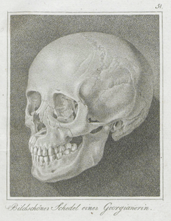 The skull Johann Friedrich Blumenbach discovered in 1795, which he used to hypothesize origination of Europeans from the Caucasus.