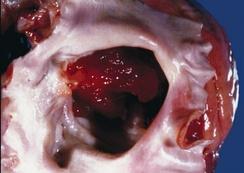 Миксома сердца— видна узкая ножка, которой желатинообразная опухоль крепится к межпредсердной перегородке. Опухоль имеет неровную поверхность и почти заполняет левое предсердие.