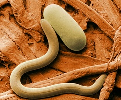 Colorized electron micrograph of soybean cyst nematode (Heterodera sp.) and egg