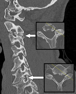 Special planes are sometimes useful, such as this oblique longitudinal plane in order to visualize the neuroforamina of the vertebral column, showing narrowing at two levels, causing radiculopathy. The smaller images are axial plane slices.