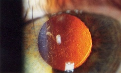 Slit lamp photo of posterior capsular opacification visible a few months after implantation of intraocular lens, seen on retroillumination