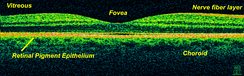 OCT scan of the macular area of a retina at 800 nm, axial resolution 3 µm