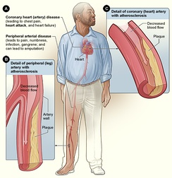 Smoking can cause atherosclerosis leading to coronary artery disease and peripheral arterial disease
