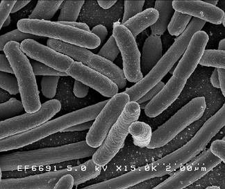 Electron micrograph of E. coli. Most bacteria that cause human disease require iron to live and to multiply.