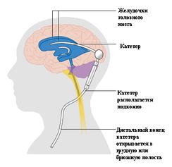 Схематическое изображение типичного шунта