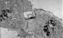 Transmission electron micrograph of a dividing cell undergoing cytokinesis