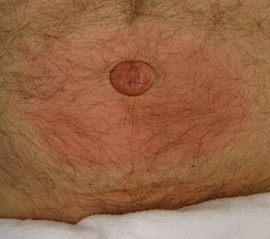Incarcerated umbilical hernia with surrounding inflammation