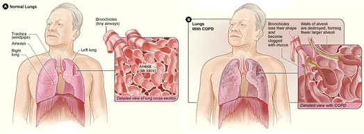 On the left is a diagram of the lungs and airways with an inset showing a detailed cross-section of normal bronchioles and alveoli. On the right are lungs damaged by COPD with an inset showing a cross-section of damaged bronchioles and alveoli.