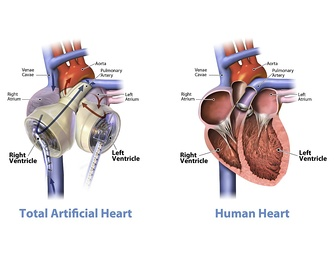 Total Artificial Heart beside a human heart