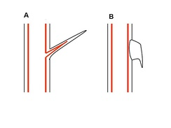 (A) Thorn or spine(B) Prickle