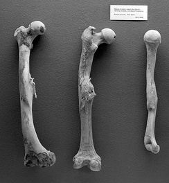 Human femurs and humerus from Roman period, with evidence of healed fractures