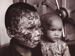 Napalm burn victims during the war being treated at the 67th Combat Support Hospital