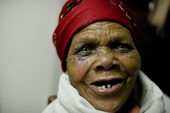 A South African woman experiences newfound eyesight after a patch was removed after surgery to remove an eye cataract.
