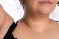"Development of neck lines (lat.monillas) or ""moon rings"" due to excess fat."