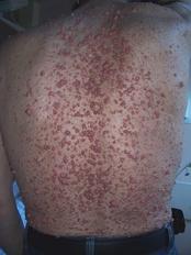 Множественные кожные нейрофибромы на спине больного нейрофиброматозом I типа