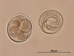 Microlecithal eggs from the roundworm Toxocara