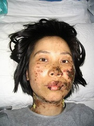 Gao Rongrong, a Falun Gong practitioner from Liaoning province, was tortured in custody in 2005.[104]