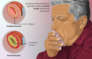 The typical symptoms of bronchiectasis are shown. Also, the change in bronchi under bronchiectasis are illustrated.