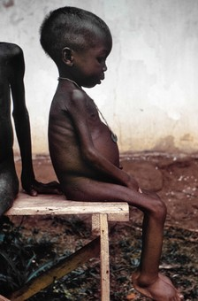 A child suffering the effects of severe hunger and malnutrition as a result of the blockade. Pictures of the famine caused by Nigerian blockade garnered sympathy for the Biafrans worldwide. It was regarded in the Western press as the genocide of 2 million people, half of them children and fund raising for relief was carried out at the time, with the help of Senator Ted Kennedy.