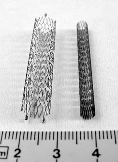 Compressed and expanded peripheral artery stents