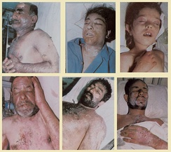 Victims of the 1987 chemical attack on Sardasht, West Azerbaijan, Iran