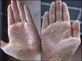 Desquamation of skin on hands, caused by scarlet fever infection