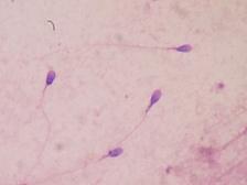 Сперматозоиды человека на окрашенном мазке.