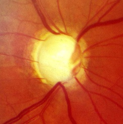 Optic nerve in advanced glaucoma disease