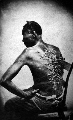 Abolitionist imagery focused on atrocities against slaves[2] (1863 photo of Gordon)