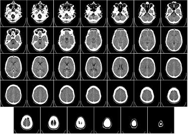 Компьютерная томограмма головного мозга