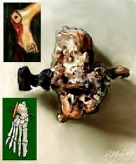 Skeletal remains of Jehohanan, 1st-century CE crucifixion victim from Givat HaMivtar in Jerusalem, with a nail still lodged inside the heel bone.