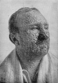 A smallpox sufferer in the United States, 1912