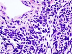 Small-cell lung carcinoma (microscopic view of a core needle biopsy)